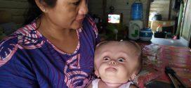 Butuh Uluran Tangan, Bayi  8 Bulan Penderita Hidrosefalus